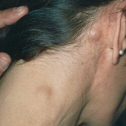 lymph cancer