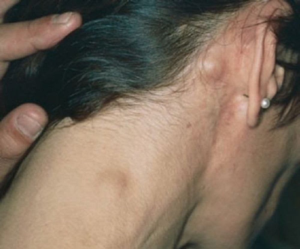 lymph cancer